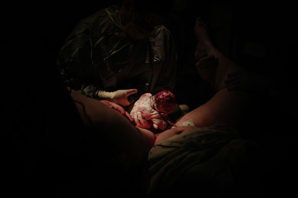 Hospital Birth, Birth Photography, Birth Photographer, KaleyLoved Photography, Sioux Falls, Natural Birth, South Dakota,