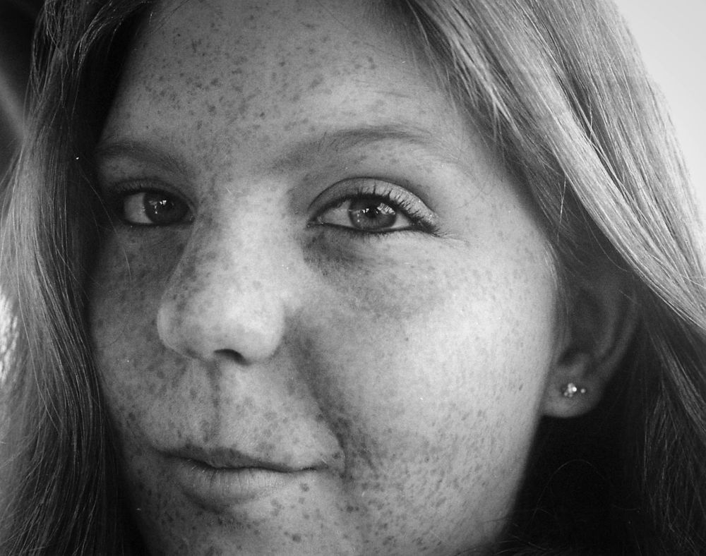 close up of girls face freckles